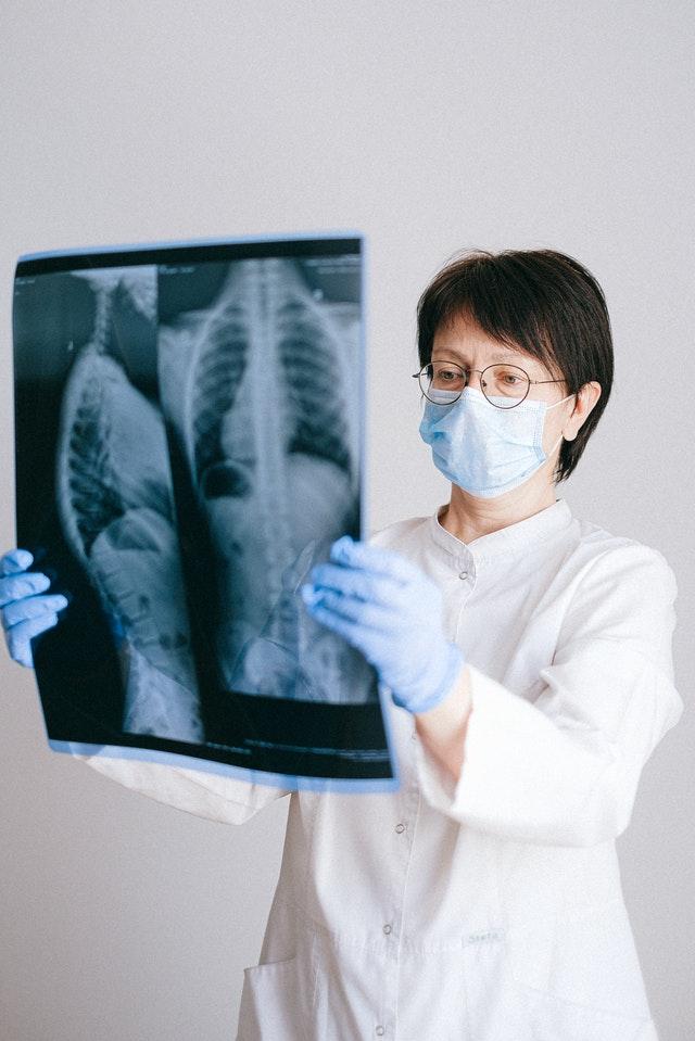 רופאה מחזיקה צילום רנטגן
